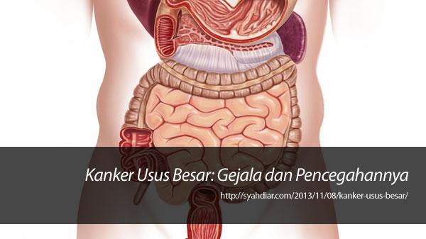 Kanker Usus Besar: Gejala dan Pencegahannya   Syahdiar